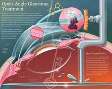 Open-Angle Glaucoma Treatment