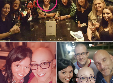 Life As A Bald Woman Isn't As Bad As I Feared