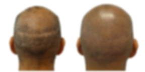 4431811__scar_enhancement_via_scalp_micr
