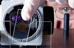 DNA Chips