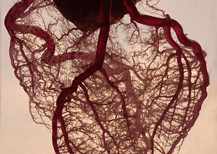 Vasculatura del corazón