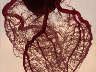 Связь между триглицеридами и болезнями сердца. Джейсон Фанг.