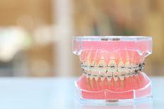 歯科矯正模型