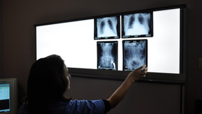 Do I Need An X-ray For My Pain?