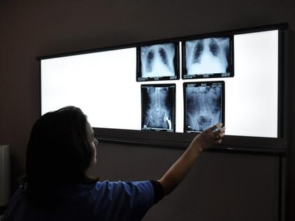 Them Bones: Menopause, Vitamins, and Bone Health
