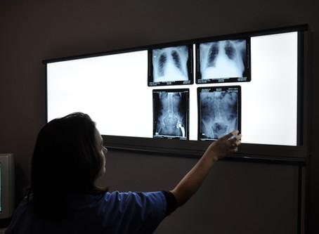 Aizputes filiālē īslaicīgi slēgs rentgena kabinetu