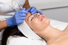 Women getting a hyaluronic acid microneedling facial