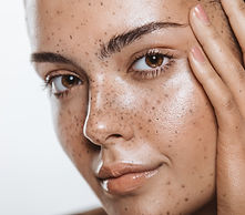Woman with smooth, blemish-free skin