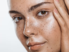 Nutrition for naturally healthy skin