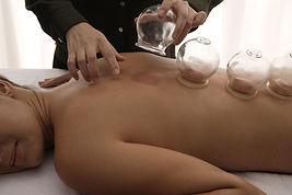 Cupping-behandeling