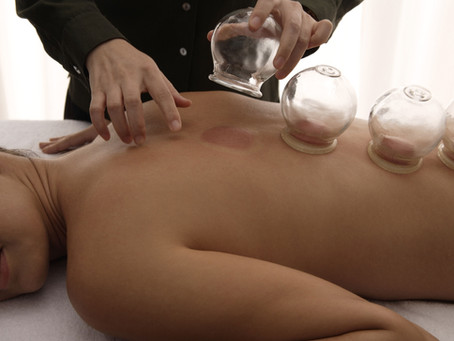 The Ancient Art of Cupping; Why It's Best Till Today?