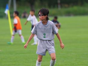 子供のスポーツ中の脳震盪:脳震盪による目やバランス機能低下発生のリスク要素