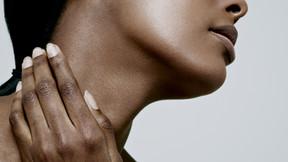 Case 3. Intense neck pain and migraine headache