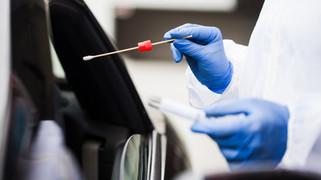 Coronavirus, 14 casi oggi in Calabria su 1.315 tamponi processati. Bollettino del 13 settembre