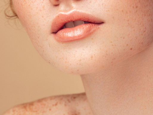 Treatment of Skin Conditions with Acupuncture