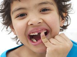 חבלות בשיניים בילדים: הסיבות ואיך לטפל