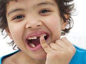 कैसे करे अपने बच्चे के दांतो की सही देख रेख