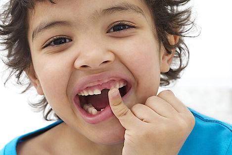 Упавшие зубы