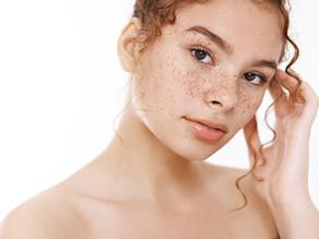 Pigmentforandringer og Melasma