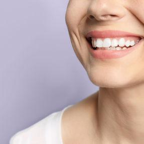 Épilation du menton et lèvres