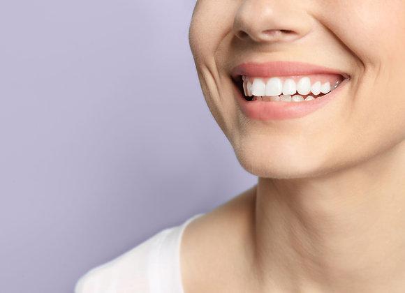 Teeth Whitening At-Home Kit