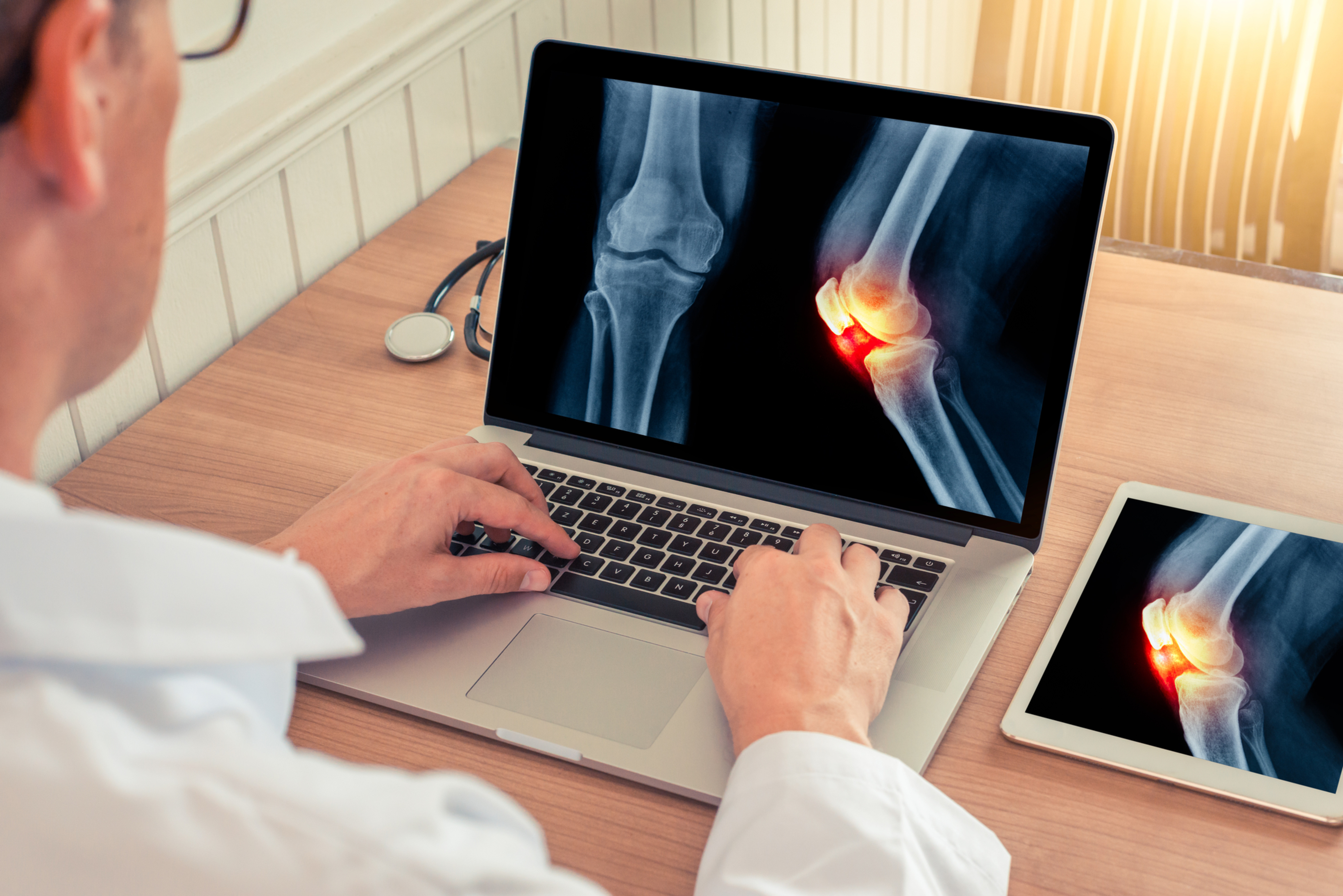 Foot ankle and Knee sprain/injury/pain