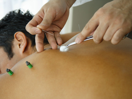 Acupuncture for Treating Lupus