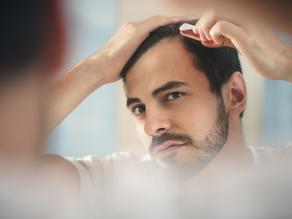 Rambut Rontok Hingga Botak? Kenali Alopesia Androgenik