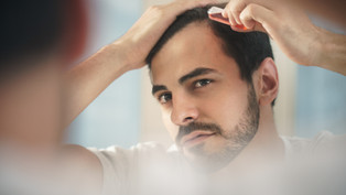 What to Do When Diagnosed with Scarring Alopecia?