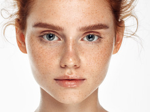How much do you know about melasma?