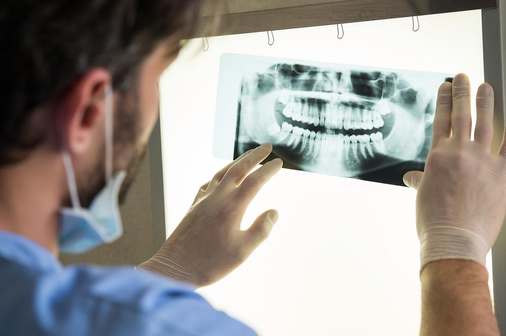 צילום סטטוס אצל רופא שיניים ובוחן מצב השיניים לפני טיפול