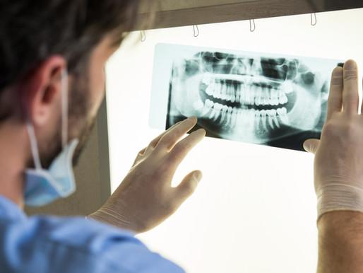 דוקטור, מה אפשר לעשות כדי להציל ״שיניים חולות״?