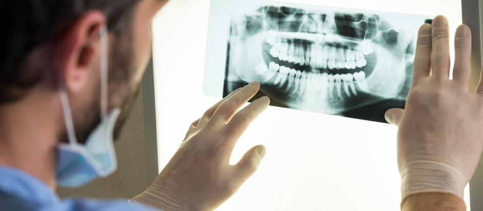 חריקת שיניים (ברוקסיזם) - האם זו מחלה?