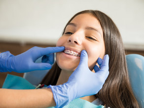 When Is The Right Time To Start Braces For My Kids ?