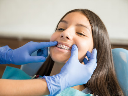 How Much Time Braces Takes to Straighten Your Teeth?