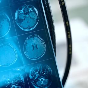 Άτυπες εστίες εγκεφάλου