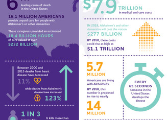 Do You Know the Facts about Alzheimer's Disease?