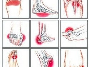 Have Foot Pain?