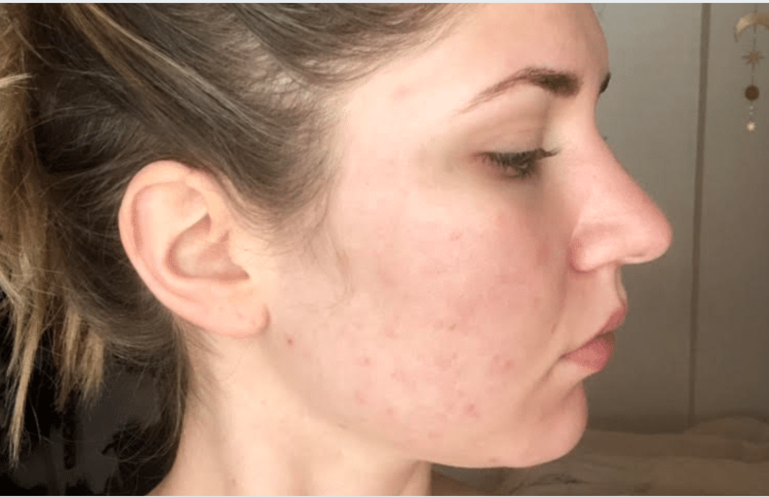 ACNE CLEARING PACKAGES
