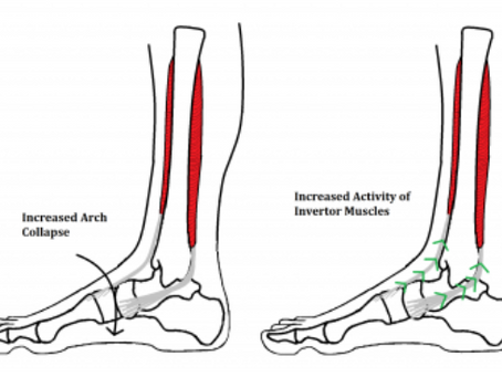 Running: Medial Tibial Stress Syndrome