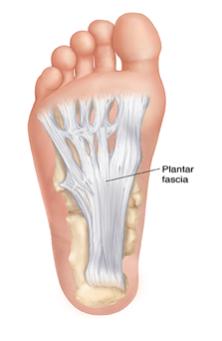 Running: Plantar Fasciitis