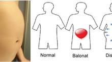 Balonare si durerile de coloana