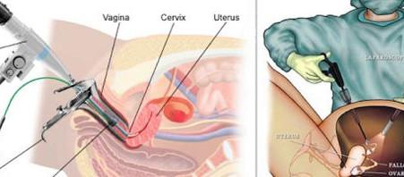 جراحة المنظار في استئصال الرحم