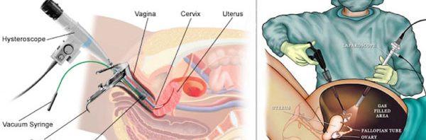 جراحة المنظار في استئصال الرحم (التنظير البطني والتنظير الرحمي(