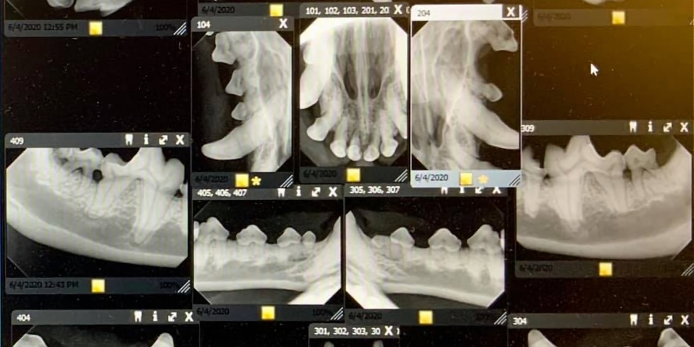 Dental X-ray Positioning RACE CE $25