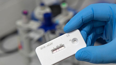 antibody test.jpg