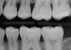 Digital Dental X-Rays in Aventura