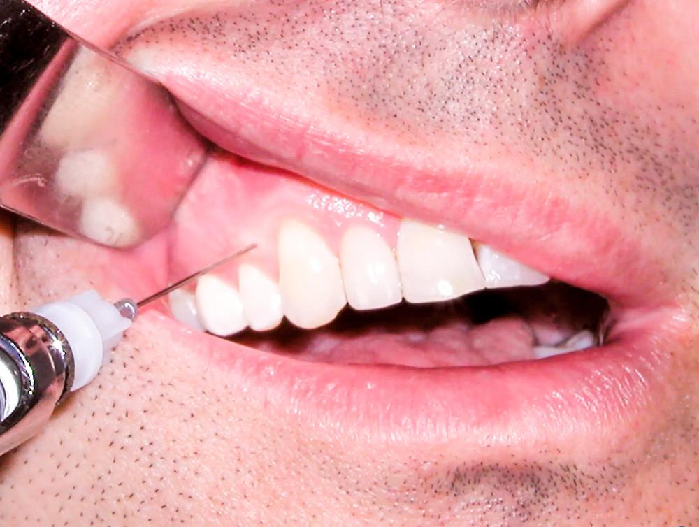 Лечение зубов в Самаре | Стоматолог | Кариес