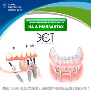 имплантация в самаре | all on 4 | стоматология
