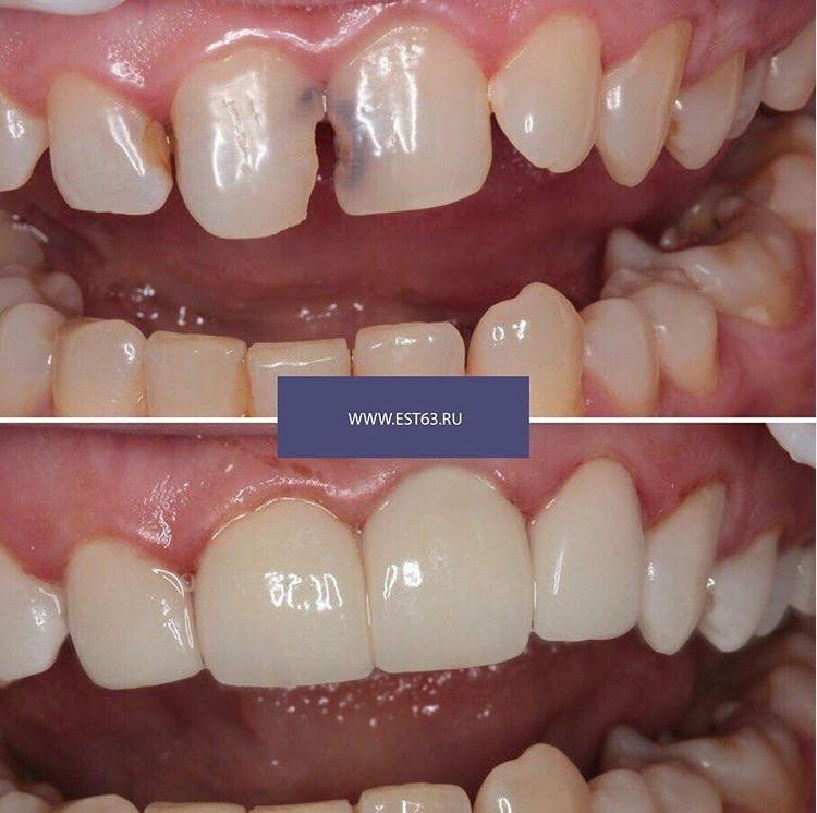 Лечение кариеса | Самара | Стоматология | Виниры